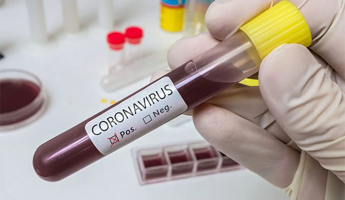 Coronavirus has shown that we don't regard mental healthcare – CEO of Mental Health Authority