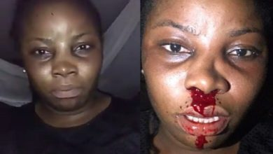 Lady Cries Out After Policemen Allegedly Assaulted Her And Broke Her Nose